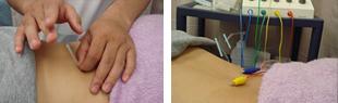鍼治療の写真